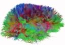 MRI brain connections